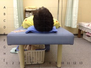 左肩の痛みBefore